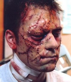 Special makeup effects reproduction of post-medical treatment to car crash victim. Materials included foam latex appliance.