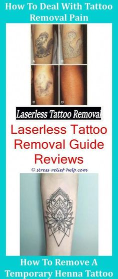 44562f136ea27 Does Tattoo Removal Hurt Tattoo Removal Ottawa,local tattoo removal does  laser t… #Tattoos