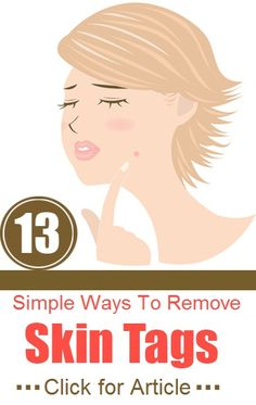 13 Simple Ways To Remove Skin Tags