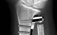 Do really need to choose what brand to use on your Join Replacement? #HipSurgery http://stpetehipandknee.com/brand-choose-joint-replacement