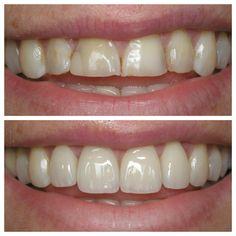 Dental veneers (sometimes called porcelain veneers or dental porcelain laminates. Veneers Teeth, Dental Veneers, Smile Dental, Dental Care, Dental Surgery, Dental Implants, Affordable Dental, Porcelain Veneers, Perfect Teeth