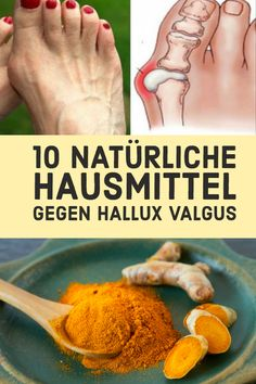 10 Natural home remedies for hallux valgus - Hair & Beauty Trends Beauty Tips Easy, Beauty Hacks, Natural Home Remedies, Health, Yoga Fitness, Tricks, Sport, Lifestyle, Physical Therapy