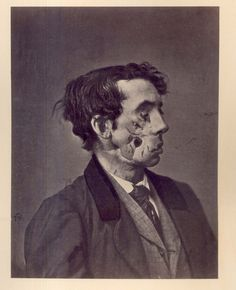 """""""Shell Wound of the face, with great destruction of the soft parts."""" Private Joseph Harvey, Co. C, 149th New York Volunteers. Wounded at Chancellorsville, Virginia on May 31863."""