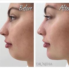 v-shaped slimming mask Amazing ResultsAmazing Results Face Fillers, Dermal Fillers, Chin Filler, Chiseled Jawline, Chin Implant, Big Pores, Botox Before And After, Nasolabial Folds, Brow Lift