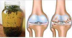 Ce remède éliminera la douleur dans vos articulations en un seul jour!