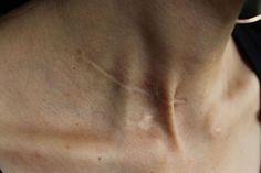 body, pain, and scar kép