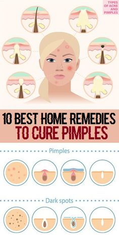 Whether you're worried about that newly arrived pimple on your face, Acne occurs because of the action of the hormones on the sebaceous