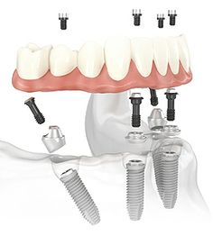Based on Nobel Biocare's pioneering Immediate Function™ technology, the All-on-4 treatment concept was developed to provide patients with an efficient and effective restoration using only four dental implants to support an immediately loaded, full-arch prosthesis. With clinical studies showing a high level of stability, All-on-4 is an excellent treatment option for patients requiring immediate tooth extraction and implant supported dentures. http://www.rankipedia.com/dentist/dentistprofile/id...