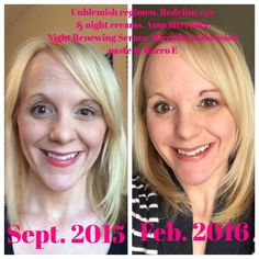 """before after forehead """"So here is my before & after from using Rodan + Fields. The before was taken la. Marlo Thomas, Kim Basinger, Amp Md Roller, Botox Before And After, Rodan And Fields Redefine, Private Parts, Good Skin, Something To Do, Eyelashes"""