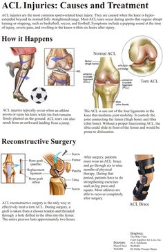 Infographic describing what an ACL tear actually consists of