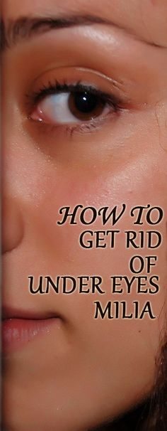 f you have been having problems with a crop of those little white spots, called Milia, under your eyes, here are some tips for how you could get rid of them. First of all, you really should take a two-pronged approach. Skin Bumps, Beauty Ideas, Body Care, Beauty Makeup, Remedies, Take That, Medical, Skin Care