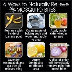 Home Remedies To Naturally Relieve Mosquito Bites / DIY Tag