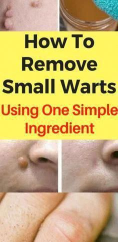 5 Relatively easy Home Remedies To acquire Rid Of Skin Warts - Hausmittel Home Remedies For Warts, Warts Remedy, Warts On Hands, Warts On Face, What Causes Warts, Flat Warts, Types Of Warts, Skin Care, Beauty