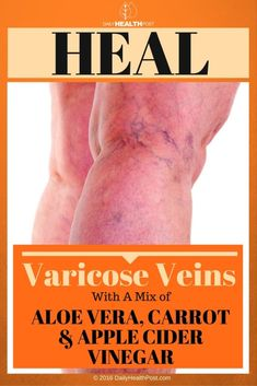 Heal your varicose veins with a mix of aloe vera, carrot and apple cider vinegar – RECIPE!