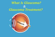 If you are facing glaucoma eye disease and want to know who can give better glaucoma treatment in Gurgaon. Normal Pressure, Drainage Channel, Eye Pain, Optic Nerve, Laser Surgery, Types Of Eyes, Eye Exam, Eye Doctor, Cool Eyes