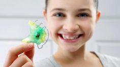 Eine Zahnspange ist ein medizinisches Hilfsmittel, mit dem Fehlstellungen von Zähnen und Kiefer korrigiert werden können. Man unterscheidet feste von losen Zahnspangen.