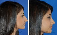 Rhinoplasty Before and After Gallery – Beverly Hills / LA – Plastic surgery! Rhinoplasty Before and After Gallery – Beverly Hills / LA – Rhinoplasty Before and After Gallery – Beverly Hills / LA Rhinoplasty Before and After Gallery – Beverly Hills / LA Rhinoplasty Surgery, Nose Surgery, Beverly Hills, Marie Osmond, Liposuction Cost, Facial Procedure, Rhinoplasty Before And After, Photoshop, Plastic Surgery