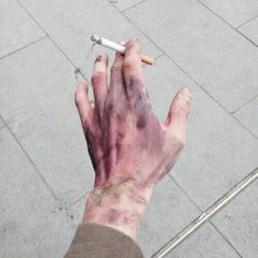 The people around him stared him with fear, and he simply walked past carrying a cigarette in his hand full of blue and purple bruises.