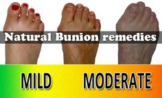 Natural Bunion remedies