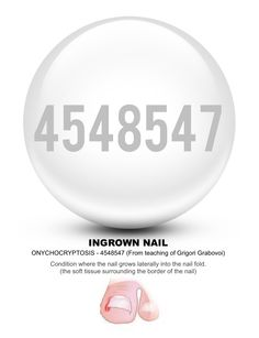 Grabovoi number sequence for Ingrown Nail 4548547.