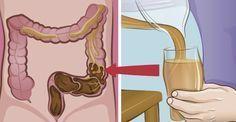 Je dikke darm is je dankbaar! Het is een veel voorkomend probleem: verstopte darmen, darmontsteking of het prikkelbaredarmsyndqoom. Iedereen heeft hier weleens last van een van deze dingen. Wil je dit voorkomen? Dan is het vooral belangrijk dat je goed op je voeding let. Heb je toch last van je dar