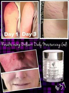 Results from our Brilliant Moisturizer- rosacea and stretch marks vanished! Www.youniqueproducts.com/MandyKLowe