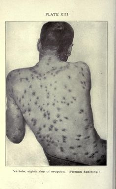 Smallpox as illustrated by a photograph in : A practical treasise on diseases of the skin, 1909.