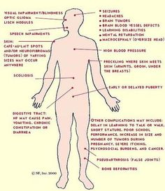 AD; chr17 Symptoms of NF1. Assocated with thymic carcinoid 25%. Neurofibroma (plexiform); malignant peripheral nerve sheath tumors 4:1 male 3-10% patients