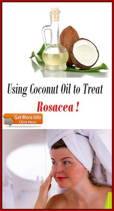 Using Coconut Oil to Treat Rosacea How To Stay Healthy, Coconut Oil, Treats, Food, Sweet Like Candy, Meal, Essen, Hoods, Meals