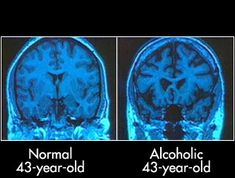 effects of drinking alcohol | Drinking: Effects Of Alcohol On The Brain