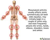 Rhematoid arthritis usually affects joints symmetrically (on both sides equally), may initially begin in a couple of joints only, and most frequently attacks the wrists, hands, elbows, shoulders, knees, and ankles
