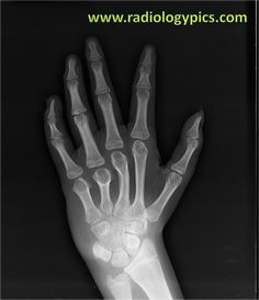 Short 4th and 5th metacarpals: Radiograph of the left hand shows the 4th and 5th metacarpals are abnormally shorter than the other metacarpals. Additionally, the third metacarpal is abnormally bowed.