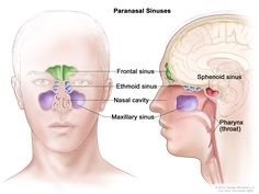 Anatomy of the paranasal sinuses; drawing shows front and side views of the frontal sinus, ethmoid sinus, maxillary sinus, and sphenoid sinus. The nasal cavity and pharynx (throat) are also shown. Anatomy Head, Body Anatomy, Human Anatomy, Sinus Cavities, Sinus Congestion, Paranasal Sinuses, Maxillary Sinus, Nasal Cavity, Nursing