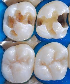 """#Repost @felipevillaverde ・・・ Restaurações proximais ✔️ Controlar a translucidez da face proximal é uma dica legal para restaurar cavidades classe II.  Resinas com maior """"valor"""" evitam o acinzentamento nestas áreas. Resina Z350 (3M) EA1 é fantástica para proximal e oclusal #Estratificacção #Layering #ResinaComposta #Composite #DirectComposite #BiomimeticDentistry #Biomimetismo #DentísticaRestauradora #CosmeticDentistry #AdhesiveDentistry #RestorativeDentistry"""