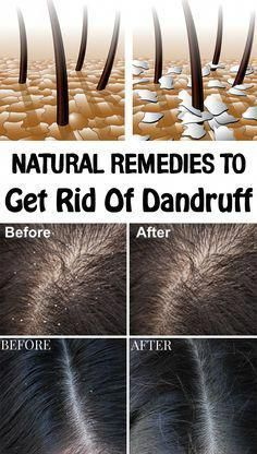 Are you ashamed of wearing a black dress? Try natural home remedies for dandruff. Using these remedies on a regular basis, you will get an effective result within 15 days. Heading: Apply natural home remedies for dandruff and shine with your hair. Home Remedies For Dandruff, Natural Home Remedies, Health Remedies, Dry Hair Remedies, Itchy Scalp Remedy, Dry Itchy Scalp, Rosacea Remedies, Herbal Remedies, African Hairstyles