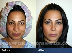 Before and after photo of a 26 year old female patient who had rhinoplasty to correct a long nose and droopy tip. She is shown before surgery and 6 months after surgery.