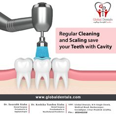 Regular cleaning and scaling is a specific procedure that will save your teeth with the cavity.  Visit Now www.globaldentals.com  #globaldentals #rootcanal #bestdentist #KidsDentalCheck #sensetivity #toothdecay #oralcare #orthodentist #dentalimplant #gorakhpur #DrSaurabhSinha #DrKoshikaTandonSinha