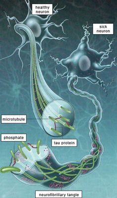 Alzheimer's-AMYLOID PLAQUES AND NEUROFIBRILLARY TANGLES from The Brain from Top to Bottom. Pinned by SOS Inc. Resources. Follow all our boards at http://pinterest.com/sostherapy for therapy resources.