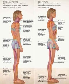Exercise Strengthening of the core is the best way to improve your posture and correct (or prevent) back problems. - Strengthening of the core is the best way to improve your posture and correct (or prevent) back problems. Posture Fix, Bad Posture, Improve Posture, Posture Support, Posture Stretches, Better Posture Exercises, Posture Help, Exercise For Posture, Back Brace For Posture