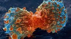 Les chercheurs canadiens guérissent le cancer, mais personne n'y prête attention !