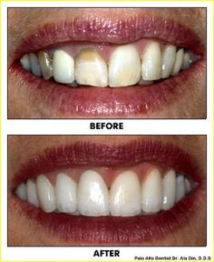 Are Chipped Or Misaligned Pearly whites Keeping You From Smiling? Cosmetic Dentistry Procedures, Tooth Crown, Sedation Dentistry, Porcelain Veneers, Jupiter Fl, Fear Of Flying, Dental Crowns, Dental Services, Beautiful Smile