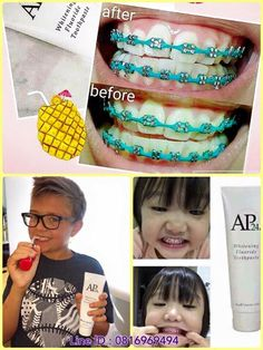 สนคาขายดน สกน AP24 Whitening Fluoride Toothpaste 110g. ชวยทำใหฟนขาวโดยไมกดหรอทำลายเนอฟน... พสจนฟนขาวขนใน 14 วน  เปลยนมาใชยาสฟนดมคณภาพกนเถอะครบ... Ap 24 Toothpaste, Whitening Fluoride Toothpaste, Teeth Whitening, Nu Skin, Galvanic Spa, Beauty Care, Dental, Health And Beauty, How To Make Money