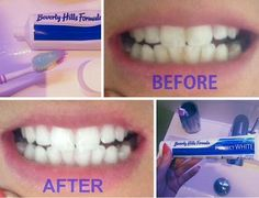 Before and After picture of Sophie from the Clothes Show Live beauty blog using our Perfect White whitening toothpaste.  #beverlyhillsformula #perfectwhite #whiteningtoothpaste #beauty #bbloggers  www.beverlyhillsformula.com Before And After Pictures, Whitening, Beverly Hills, Halloween Face Makeup, Range, Beauty, Live, Blog, Clothes