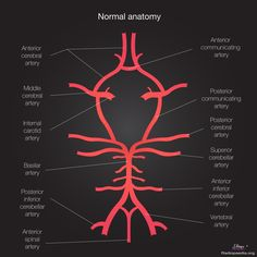 The internal carotid artery (ICA) is a terminal branch of the common carotid artery. Gross anatomy Origin It arises most frequently between and vertebral level, where the common carotid bifurcates to form the internal carotid and the ex. Brain Anatomy, Medical Anatomy, Human Anatomy And Physiology, Radiology Schools, Radiology Student, Radiologic Technology, Medical Technology, Technology Articles, Technology Careers