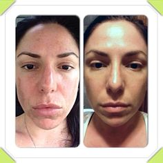"""Check out more info at https://lisadion.myrandf.biz/ Real results . . . Look at Stephanie's FANTASTIC results with Rodan + Fields skincare!! Here is what she had to say: """"Ok here is my 3 month photo- in both photos- Regimens used were Redefine and Reverse- Amp roller nightly, Macro Exfoliator tool weekly!"""""""