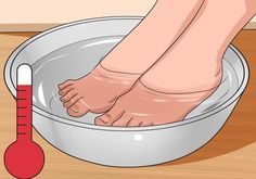 How to Get Rid of Bunions. A bunion is a bony lump that forms at the base joint in the big toe. Bunions form when tight or high-heeled shoes, an injury, or a person's inherited bone structure result in the big toe being pushed toward the. Bunion Remedies, Prevent Ingrown Toe Nails, Ingrown Nail, How To Treat Bunions, Bunion Exercises, Stretches, Home Remedies, Natural Remedies, Stretching