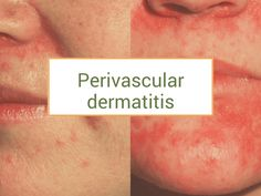 Still looking for the best remedies for perivascular dermatitis? We've got some hot tips for applications. Rheumatoid Arthritis, Happy Marriage, Skin Problems, Fibromyalgia, Food Pictures, Helpful Hints, Salons, Remedies, Advice