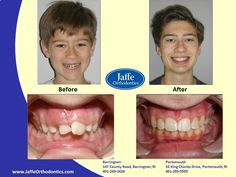 Miles Orthodontics, Portsmouth, King Charles, Photos, Pictures, Cake Smash Pictures