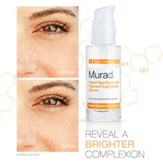 Hydroquinone, the active ingredient in Rapid Age Spot and Pigment Lightening Serum, fades dark spots, age spots and freckles, evening skin tone to reveal a clearer, brighter complexion. The product contains 2% hydroquinone, which is the highest level you can get without a prescription.