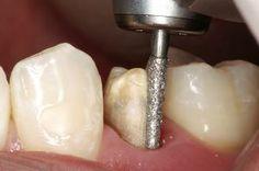 Präparation für eine Zahnkrone